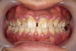 後 歯茎 腫れ 抜歯